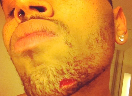 Pic! Chris Browns Nasty Injury after Reported Bottle Bash Up  