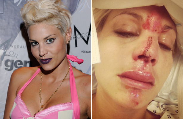 'America's Next Top Model's' Face Injured in 'Freak Accident'