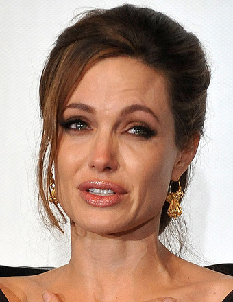 Angelina Jolie to Undergo More Surgery, Wedding May Happen Soon
