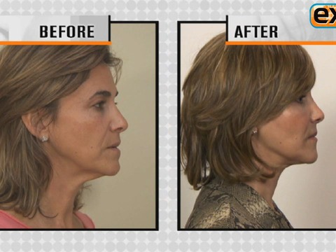 New Facelift Technique for Faces Over 50!