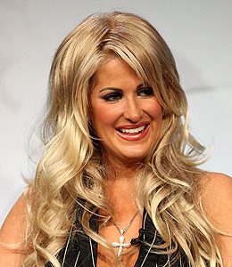 kim zolciak botox